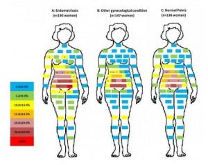 areas de dolor pelvico