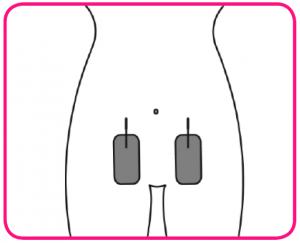 colocacion electrodos tens menstruación