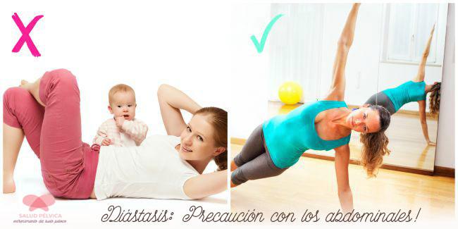 diastasis-abdominales